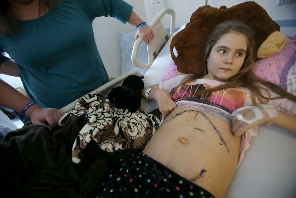 . Alyssa Welch, 15, of Riverbank, Calif., displays her surgery scars at UCSF Benioff Children\'s Hospital in San Francisco, Calif., on Tuesday, Jan. 22, 2013.  Alyssa received a liver and kidney transplant on Jan. 15 and is doing well after surgery. To the left is Alyssa\'s mom, Kim Welch. (Jane Tyska/Staff)