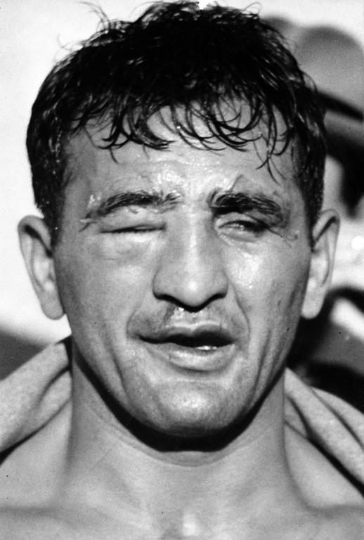 . San Francisco, CA February 22, 1938 - Young Corbett III right eye was shut tight in the fourth round by Fred Apostoli at the Seals Stadium. (Oakland Tribune Photo)
