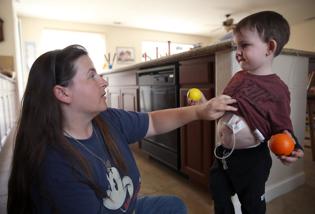 . Matthew Ouimet, 3, has his g-tube checked by his mom Kristi at their home in Antioch, Calif., on Thursday, May 22, 2014. (Jane Tyska/Bay Area News Group)